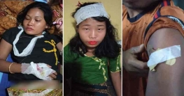যাত্রীবাহী পিকআপ ভ্যান লক্ষ্য করে সন্ত্রাসীদের গুলি, আহত তিন নারী